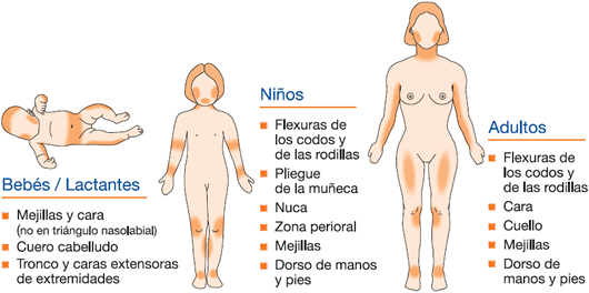 distribución de la dermatitis atópica