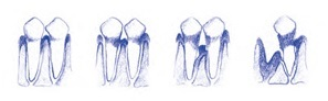 dientes gingivitis