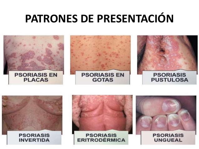 tipos psoriasis